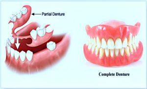 complete dentures brisbane